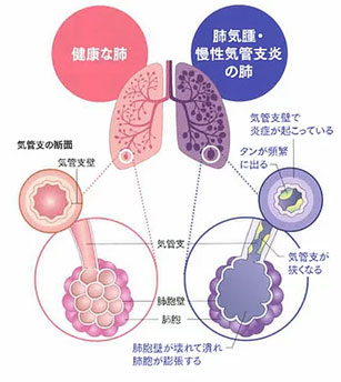 黒 プラチナ 間 質 性 肺炎